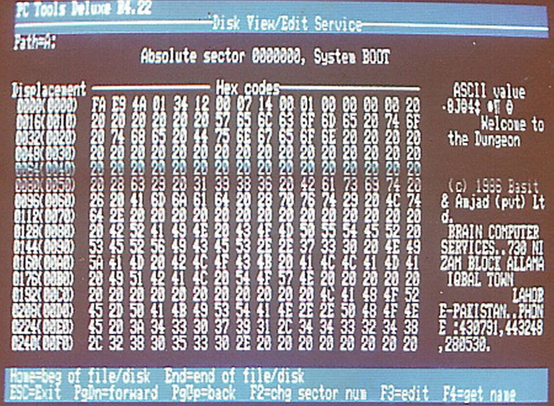 Brain Virus, 1986
